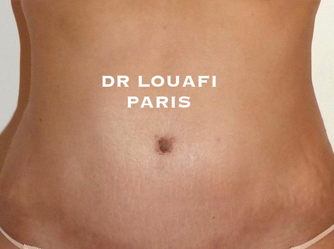 chirurgie du ventre après