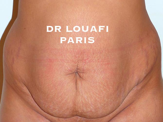 chirurgie du ventre avant