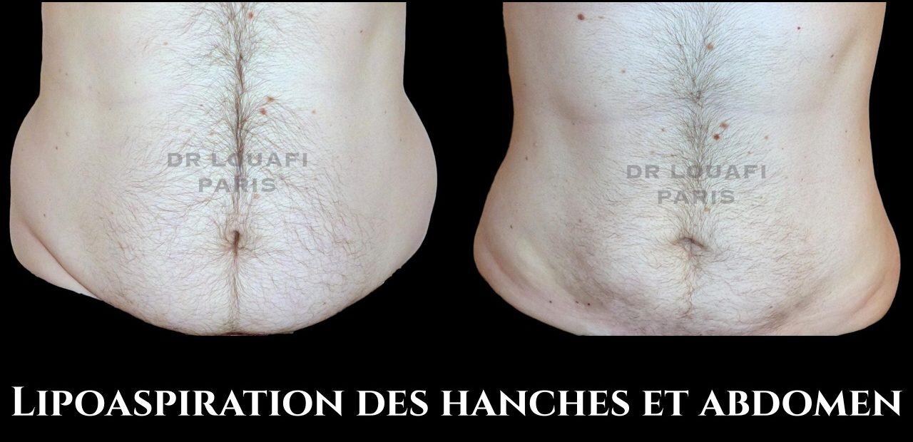 lipoaspiration hanches et abdomen
