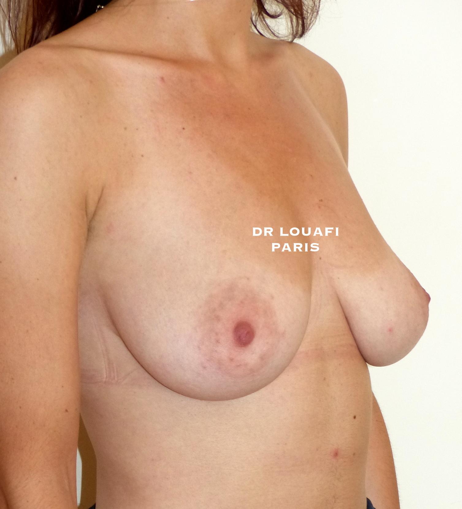 ptose mammaire avant