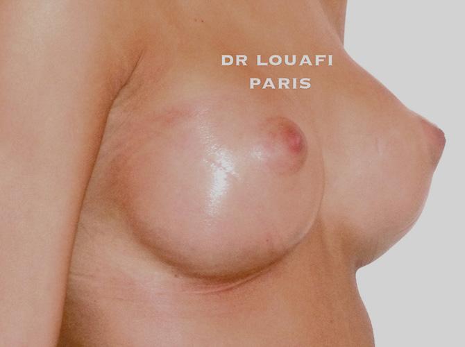 Augmentation mammaire après