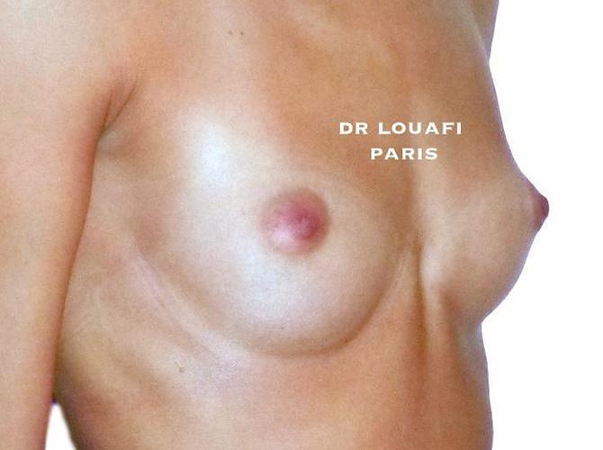 Augmentation mammaire avant