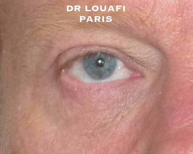 blepharoplastie photo after
