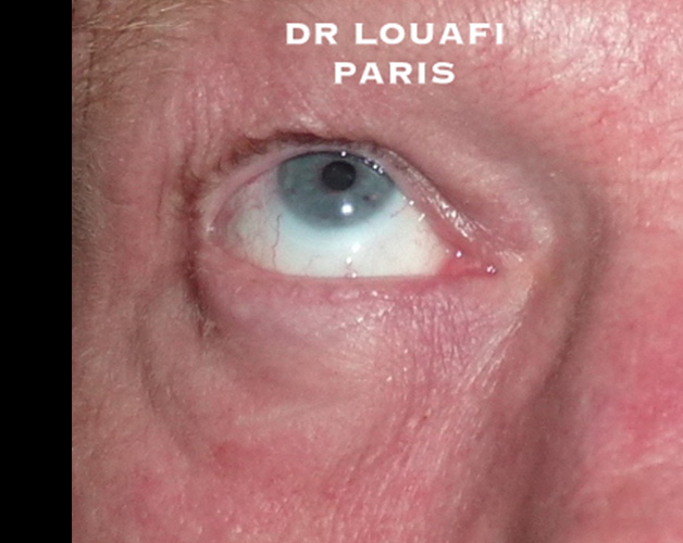 blepharoplastie photo before