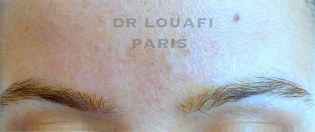 photo dermato after