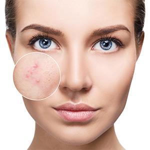 chirurgie peau