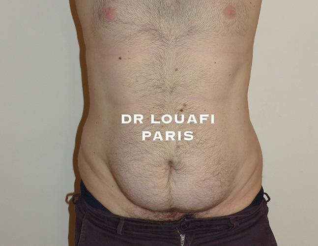 photo lipoaspiration before