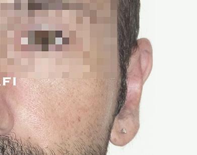 chirurgie oreilles décollées après