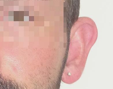 chirurgie oreilles décollées avant