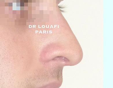 chirurgie du nez après