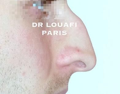 chirurgie du nez avant